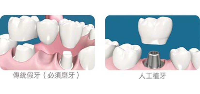 Implant-2